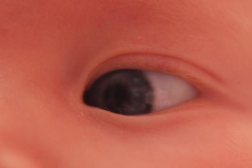 Nora Left Eye