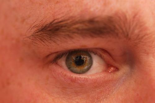 Erik's Right Eye