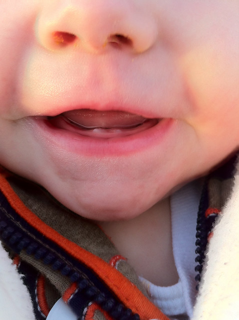Ian's Two Front Teeth