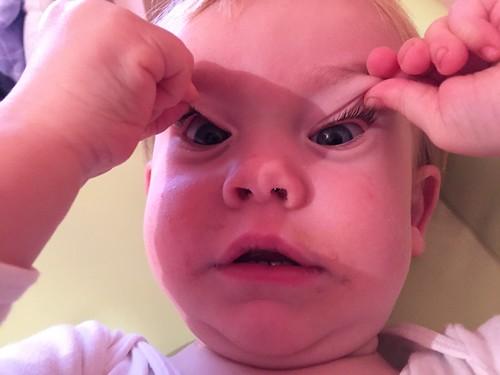 Eye flaps!