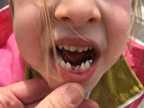 Second tooth lost
